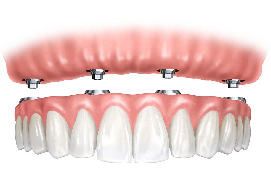 Implantes Dentario Protocolo
